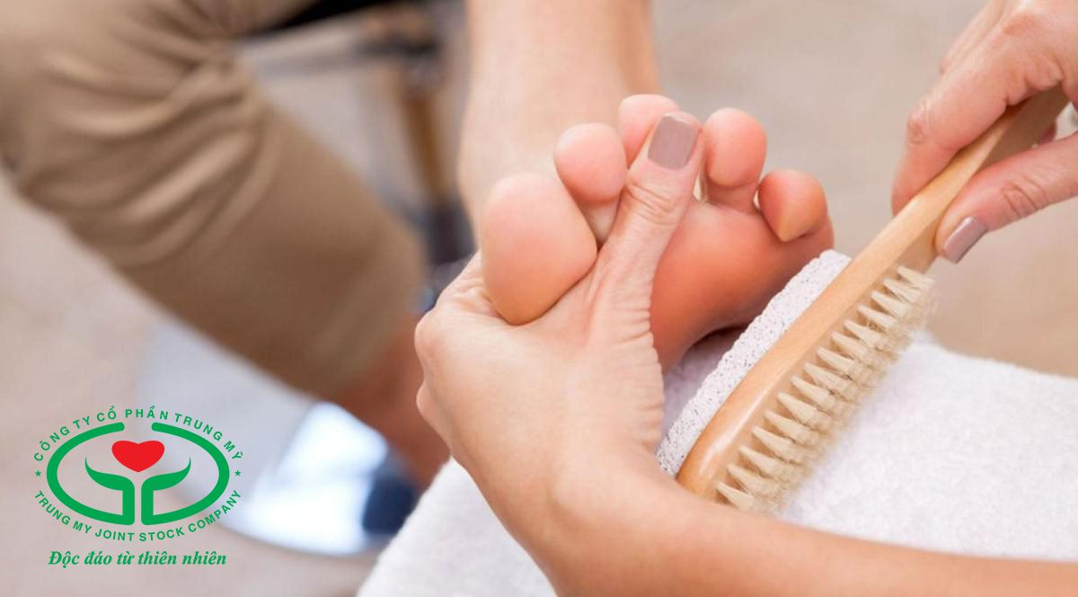 Người bị ra mồ hôi chân khi trời lạnh cần vệ sinh bàn chân hằng ngày